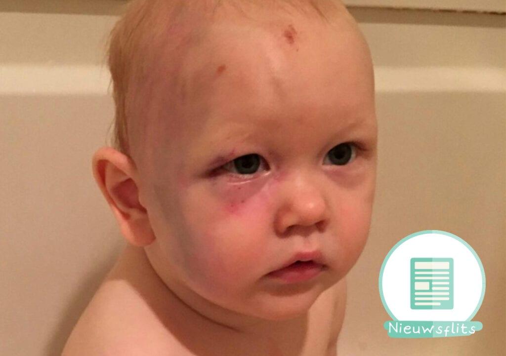 Dader mishandelde baby niet vervolgd