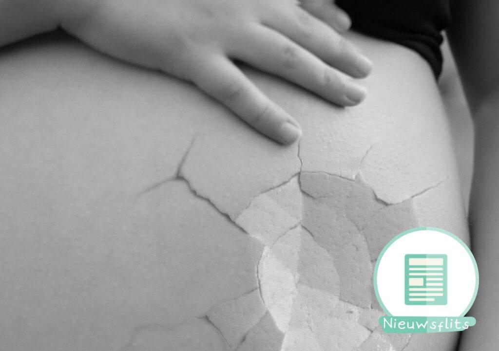 Er zijn teveel vrouwen die geopereerd worden na een miskraam