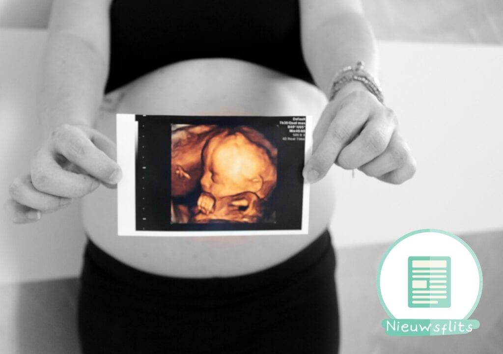 Hoogleraar: zwangere vrouwen zouden vijf echo's moeten hebben