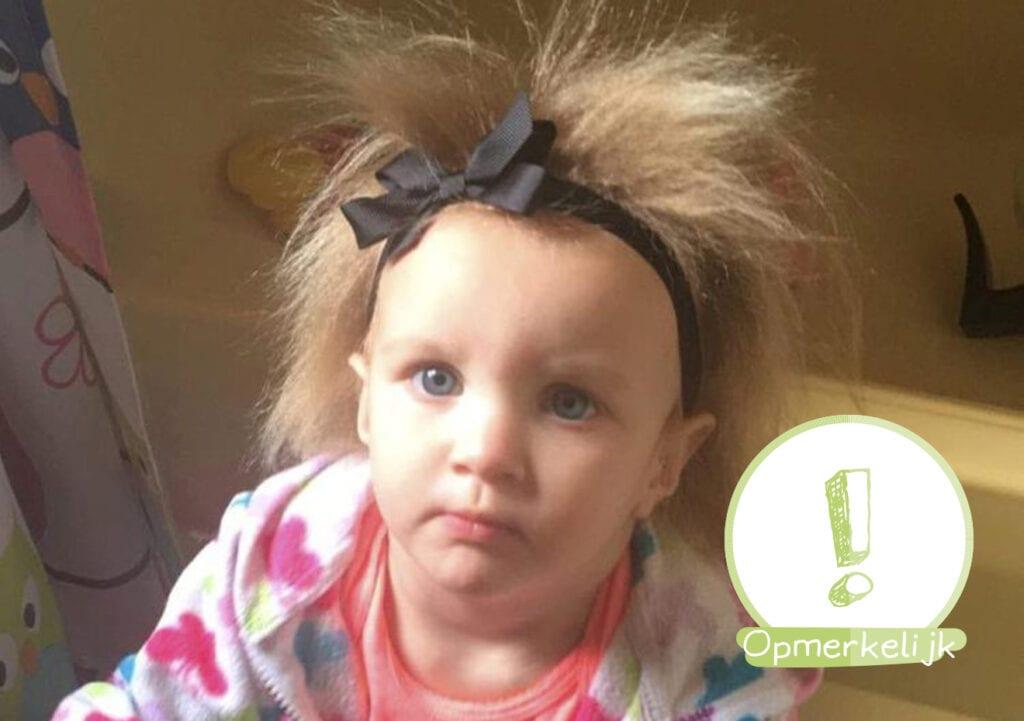 Dit meisje heeft het 'Onkambaar Haarsyndroom', nee maar echt!